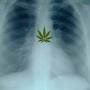 Cannabis bones israel